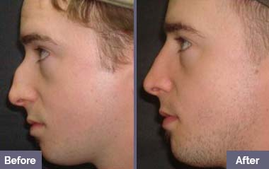 NON-SURGICAL-NOSE-JOB-before-after