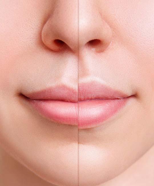 Kind of Lip Fillers