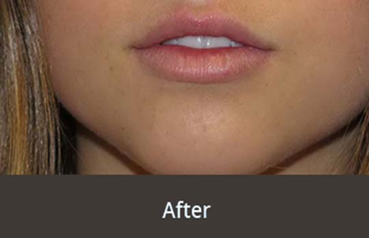 Lip Fillers London Right Image